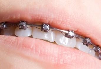 aparat dentar metalic oferta CMI Dr. Ghiba Raluca