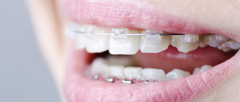 Aparat dentar Pret