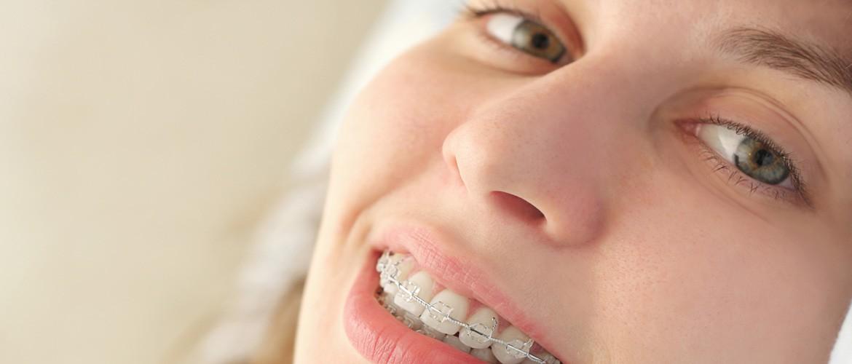 Aparat dentar safir pret